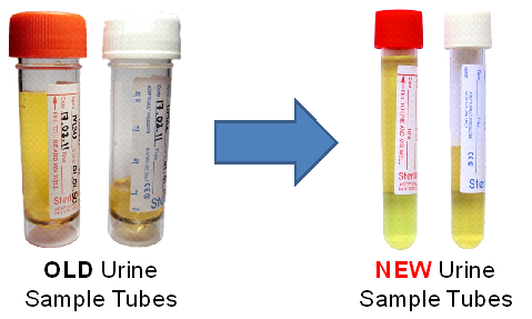 Urines for M,C&S – Change of Sample Tubes